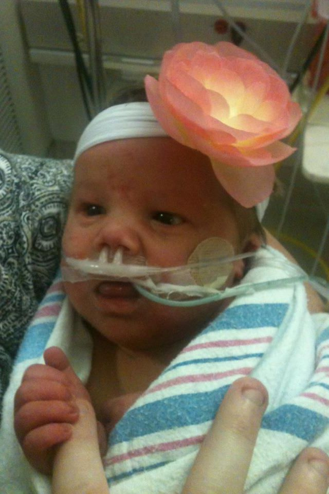 beckwithwiedemann syndrome my beautiful baby girl 2012