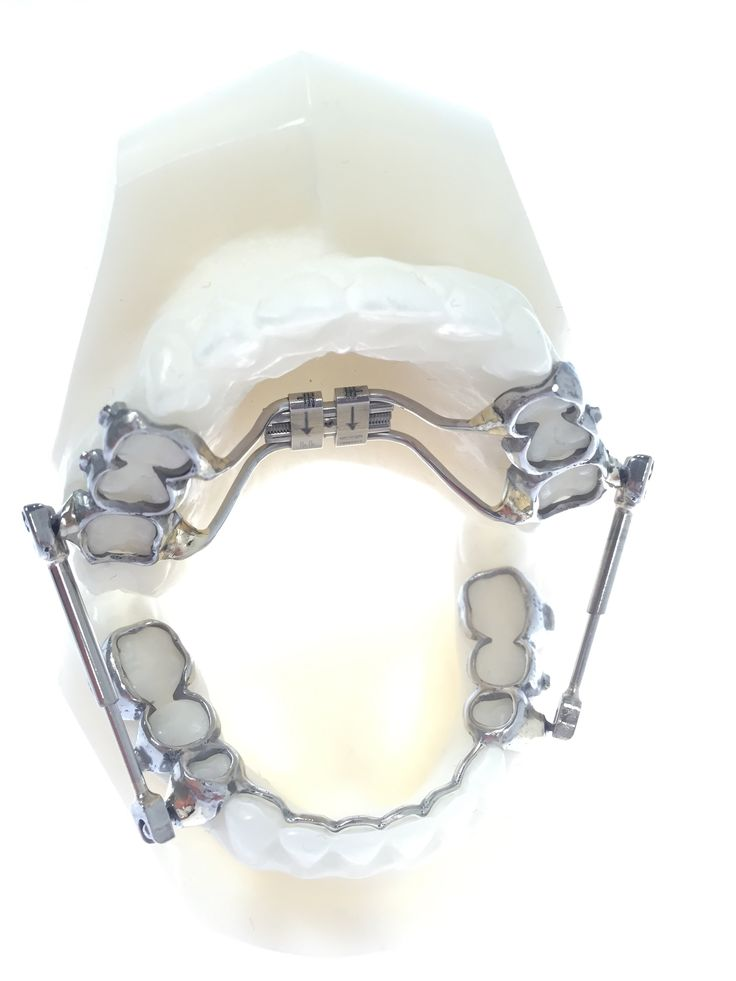 8 best Orthodontic times sure have changed images on Pinterest ...