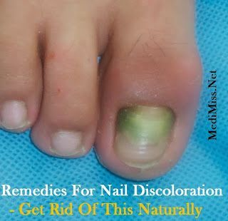 Home Remedies For Nail Discoloration - Get Rid Of This Naturally. Nail discoloration refers to the changes in the natural color of the nails. Normal healthy nails are usually strong, even, and pink in color. Your nails can become yellow, greenish, or stained due to a variety of reasons. The discoloration of the fingernails and toenails is mostly caused by the fungal infection. Conditions like pseudomonas bacterial nail infection, ingrown nail, yellow nail syndrome, and psoriasis, an