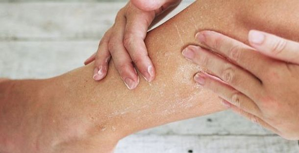 How To Get Rid Of Dry Skin Patches On Legs Skin So Soft Dry Skin Patches Natural Glowing Skin