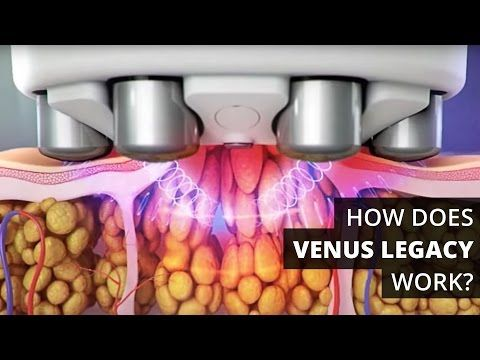 Physicians, interested in becoming a certified provider? Visit http://bit.ly/VenusLegacyVC Venus Concept is once again energizing the medical aesthetic indus...