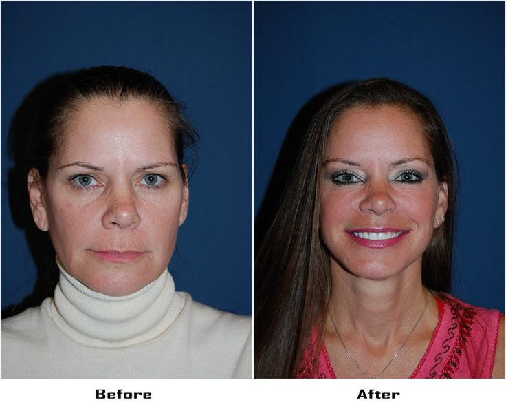 Procedures Performed: Endoscopic Brow Lift: Asymetric Brow Lift, 3/4 Brow Lift- Right, Lateral Brow Lift-Left Eyelid: Lower Lid Blepharoplasty with SOOF Deep Plane Minituck CO2 Laser Resurfacing: Eyes and Mouth Dr. Freeman's Makeovers