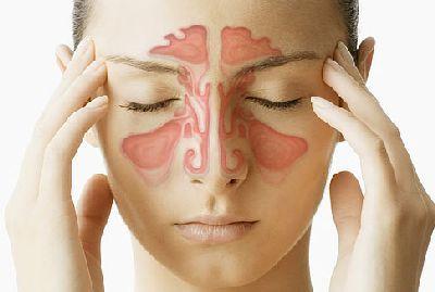 Sinusitis (Sinus Infection) Ayurvedic Treatment & Home Remedies - Ayurveda - Astrogle