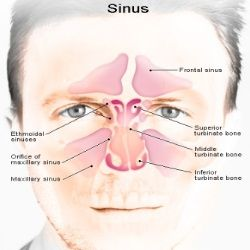 Natural Remedies For Sinus Swelling