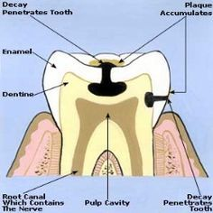 Home Remedies For Toothaches - Natural Treatments & Cure For Toothaches | Search Home Remedy