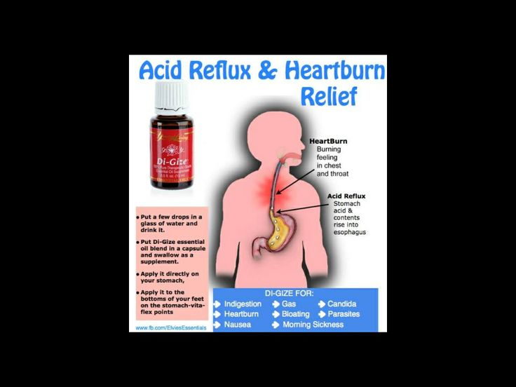 acid reflux young adults
