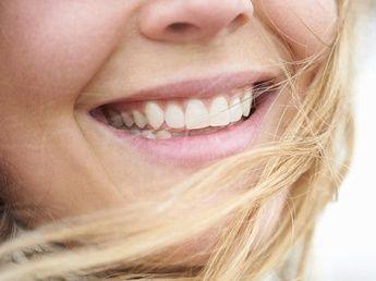 L'implant dentaire : les questions que l'on se pose