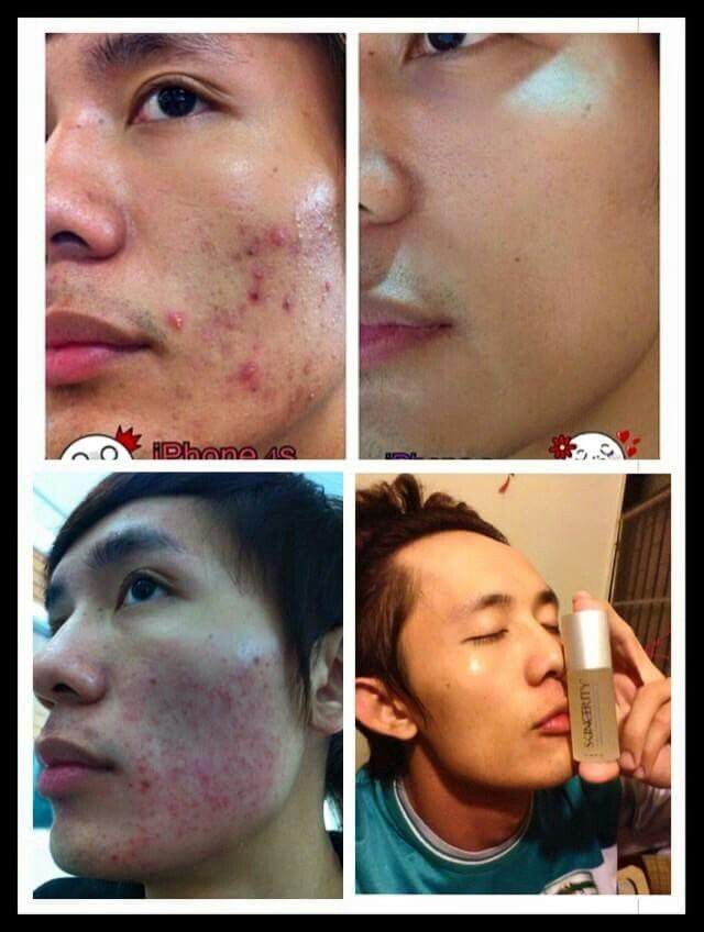 Real proof on how amazing this product is - www.buynucerity.com/219772 - use for yourself - Skincerity for Acne and everything else and Skincerity Renew for Aging Skin.