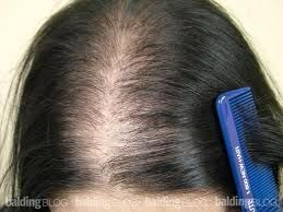Hair Loss Treatment Using Essential Oils. If you suffer from hair loss or progressive thinning hair, you can do something about it.