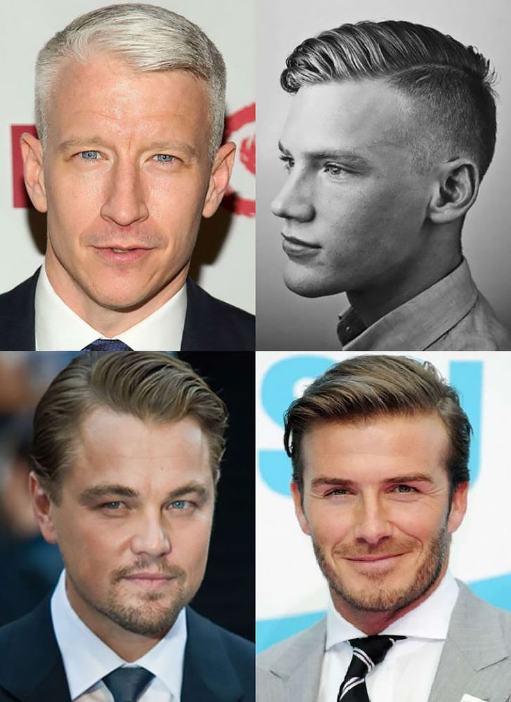 receding hairline hairstyles