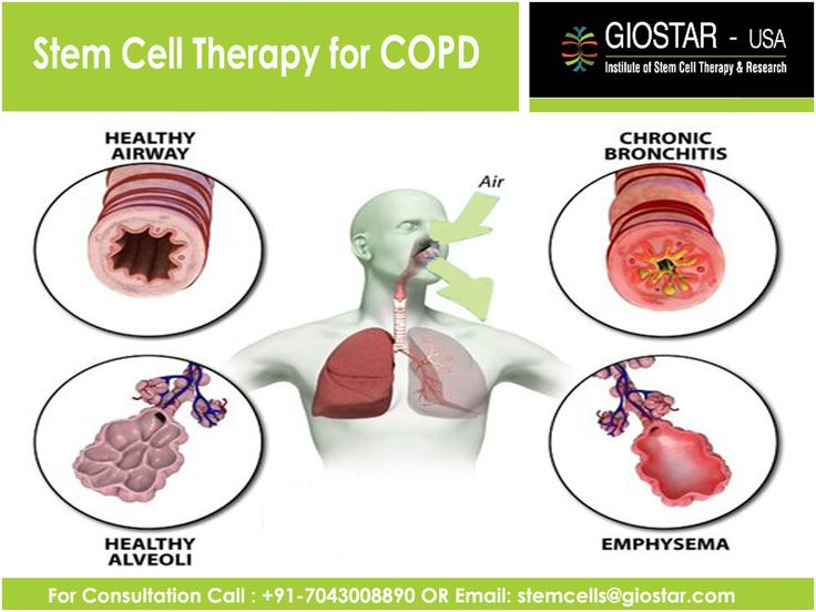 disease profile copd Chronic obstructive pulmonary disease has been defined by the global initiative for chronic obstructive lung disease as a preventable and treatable disease with some significant.