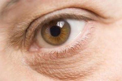 Remèdes naturels contre les poches sous les yeux