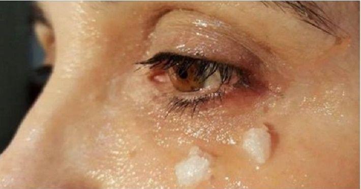 Ela aplicou óleo de coco ao redor dos olhos. 5 minutos depois... incrível!