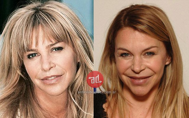 Worst celebrity plastic surgery blunders - nickiswift.com