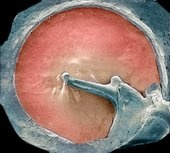 One Amazing Creation in a Circle of Sound Waves.  [Tympanic membrane (ear drum) Science Photo Library]