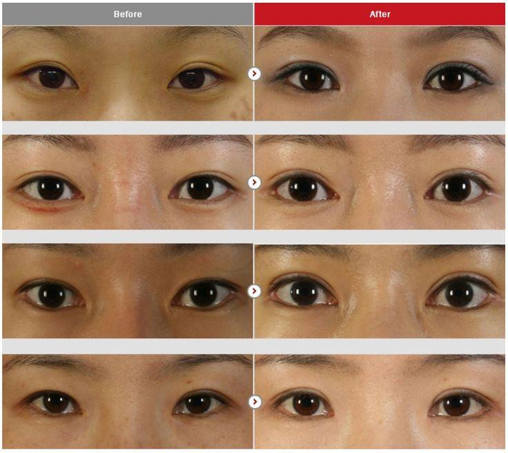 Eye Surgery Slanted Eye Lowering Plastic Surgery In