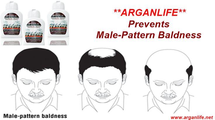 Arganlife Prevents Male Pattern Baldness..  #bald  #baldness  #baldnesscure  #baldnesstreatment  #hair  #hairloss  #hairfall  #regrow  #shedding  #argan  #arganoil  #arganlife  #arganlifeshampoo  #baldnesstreatmentformen  #solution  #baldnessremedy  #arganlifeproduct  #arganlife  #beauty  #regrow