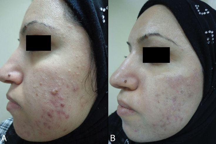 Peeling à L'acide Lactique Pour La Peau:  Un peeling à l'acide lactique peut être juste la solution si votre peau est terne, ou si vous remarquez des taches de vieillesse, pigmentation inégale ou ridules. À l'aide d'un acide doux alphahydroxy (AHA) fabriqué avec du lait fermenté, pelures de l'acide lactique sont souvent exécutées par un dermatologue, mais peelings légers et superficiels