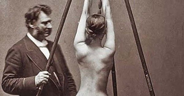 15 Vintage Medical Photos Will Make You Glad It's 2015 - These Doctors Are FREAKY