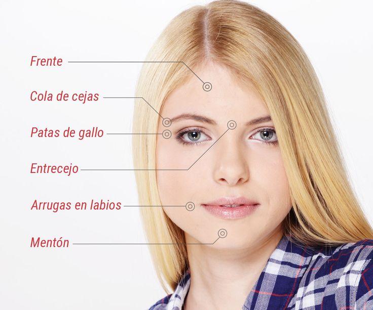 Puntos de aplicación del botox