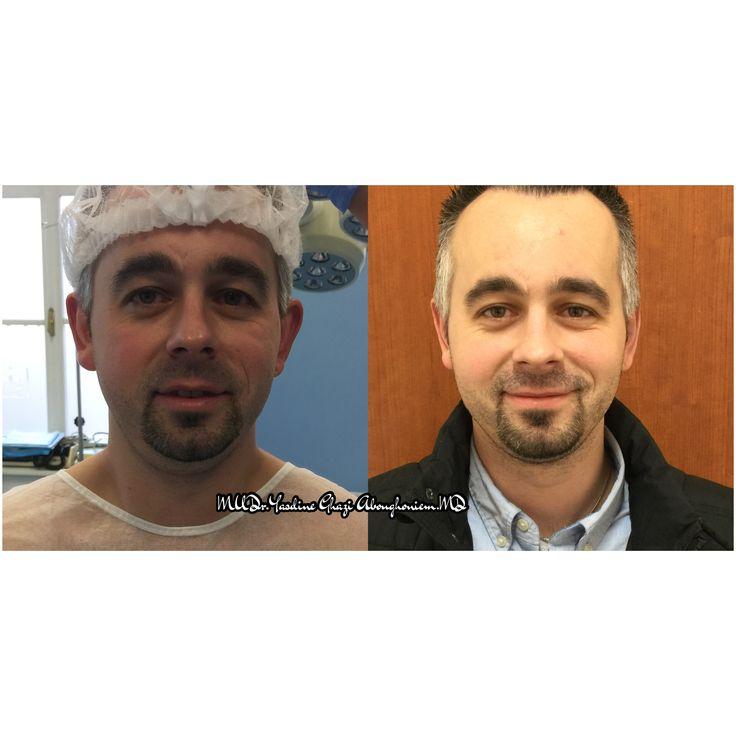 Ear Corrective surgery