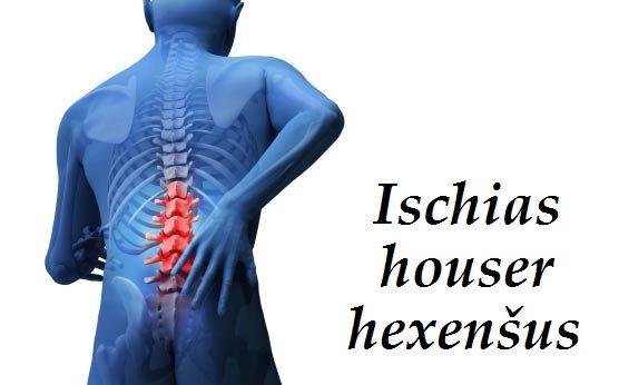 ischias houser ustrel hexensus byliny bylinky babske rady obklady koupele caje