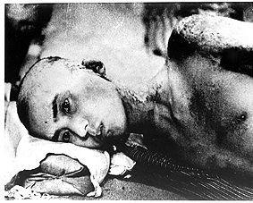 Hiroshima Victim
