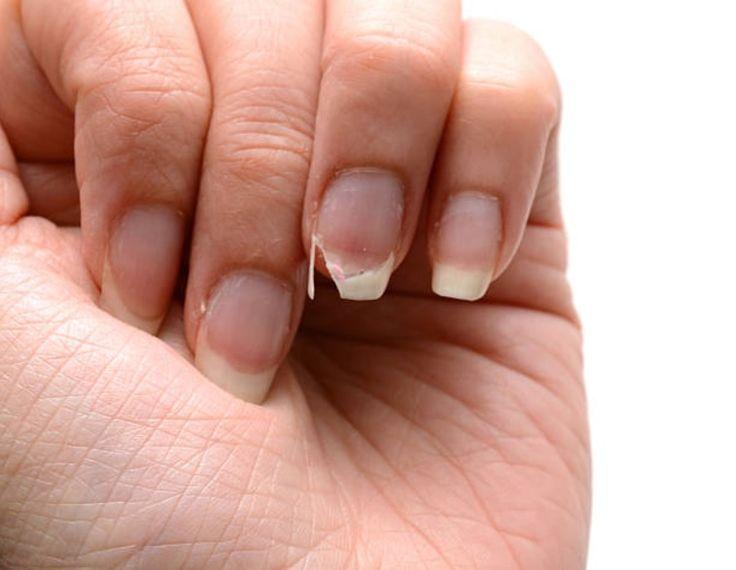Comment réparer un ongle cassé ?noté 3.2 - 45 votes Se traîner un ongle cassé est une misère. Il suffit pourtant de peu de choses pour le réparer. Un sachet de thé, et le tour est joué! Procurez-vous: Un sachet de thé Une paire de ciseaux De la colle pour faux ongles ou un vernis …