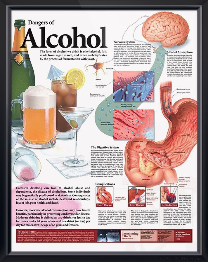 Dangers of Alcohol anatomy poster discusses how alcohol affects the nervous and digestive systems and can cause complications. Nutrition chart for doctors and nurses.