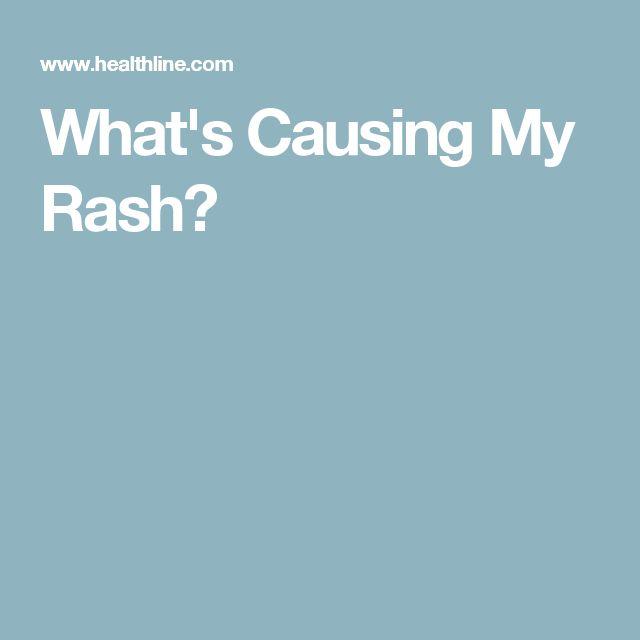 What's Causing My Rash?