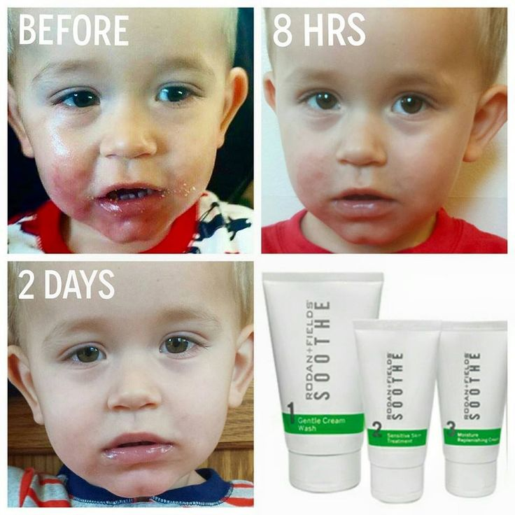 The Rodan+Fields Soothe regimen can help treat redness, irritation, sensitivity, rashes, eczema, psoriasis, rosacea and more. Super effective but gentle and safe enough to even use on children. Check out these before and after's to see what a difference it's making in people's lives. http://lbhorowitz.myrandf.com