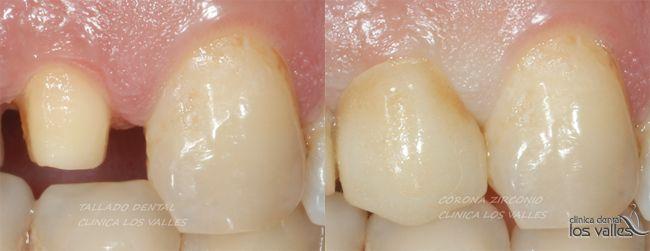 ¿Cómo tratar con éxito un caso clínico de endodoncia por caries y fundas de circonio?