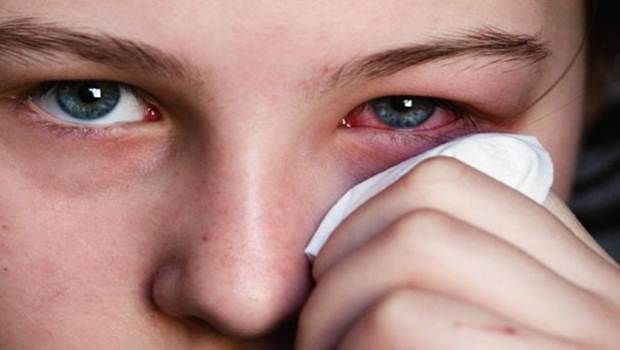 There are 9 home remedies on how to treat red eyes at home without eye drops which will help you relieve from red, bloodshot eyes