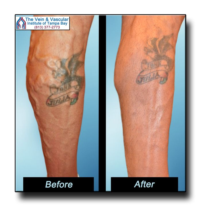 Varicose Veins Photos Before and After Laser Vein Removal by Tampa vascular surgeon, Dr. Thomas Kerr. Call (813) 377-2773 for a Vein Consultation.  https://www.tampavascularsurgeon.com/tampa-varicose-vein-removal-pictures/