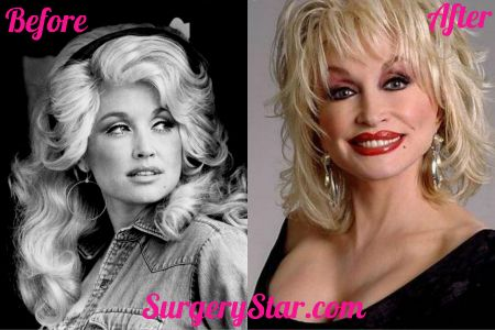 Dolly Parton After Plastic Surgery Check out what I found on the internet