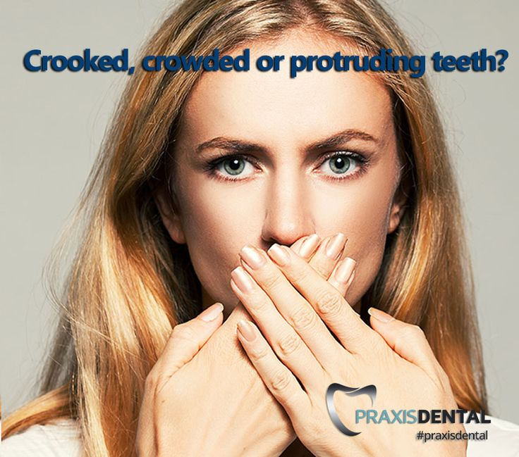 The Inman Aligner is the perfect solution for crowding or protrusion of the front teeth and we are proud to offer this genuine revolutionary solution here at Praxis Dental Pacific Pines. With just one appliance, crooked and protruded front teeth can be gently guided to an ideal position in a matter of weeks. Click here for more info http://www.praxisdental.com.au/orthodontics and call (07) 5500 0811 to book an appointment today. #gummysmilecorrection #straightsmile #perfectsm