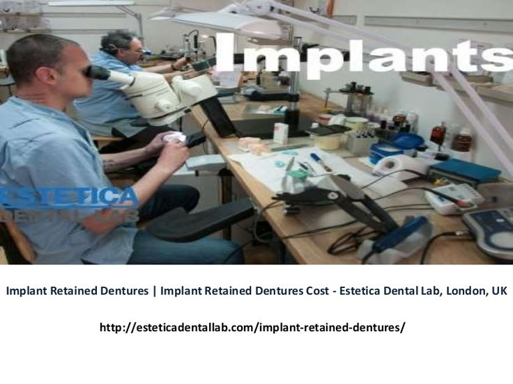 https://www.slideshare.net/esteticadental/implant-retained-dentures-implant-retained-dentures-cost-estetica-dental-lab-london-uk - Implant Retained Dentures, Implant Retained Dentures Cost, Implant Retained Denture, Implant retained dentures UK, Implant retained dentures cost UK, Implant retained denture UK