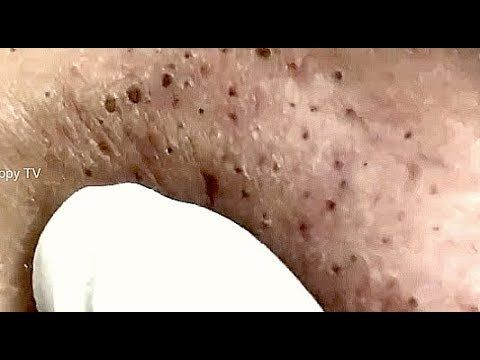 Large Blackheads Extraction – Complete face Clearance | CrazyTech