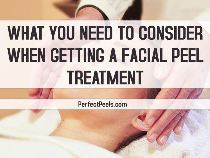 facial peel treatment