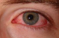 what is Conjunctivitis, what is Pink Eye, treatment of Conjunctivitis