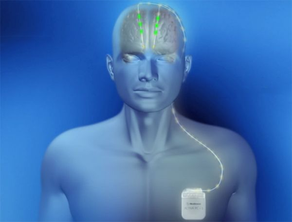 Deep Brain Stimulation Shown Effective at Slowing Down Alzheimer's Symptoms |