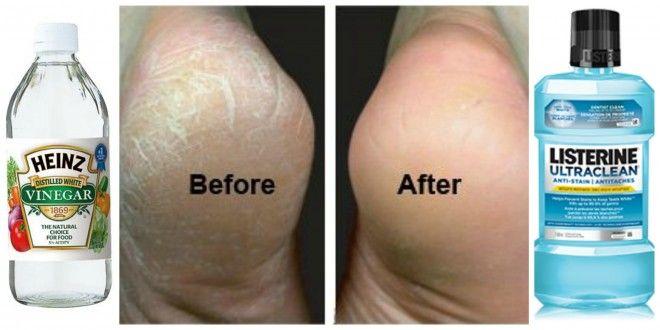 diy cracked feet solution