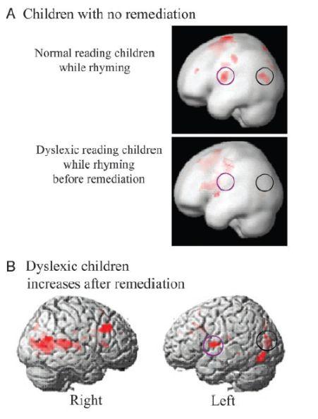Neuroeducacion. Estrategias basadas en el funcionamiento del cerebro