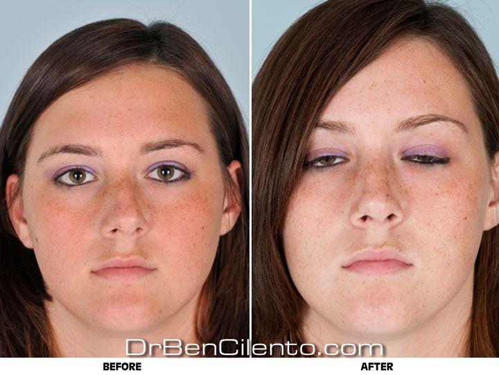 Facial fellowship plastic surgery