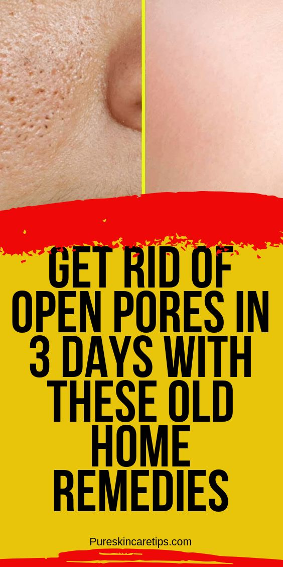 Reduce Open Pores In 3 Days With These Old Home Re…