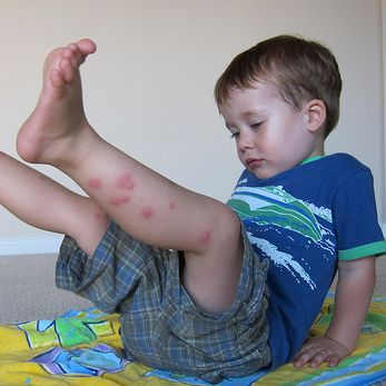 8 Home Remedies For Bug Bites, I could of used this last week