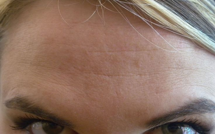 Forehead wrinkle cure.