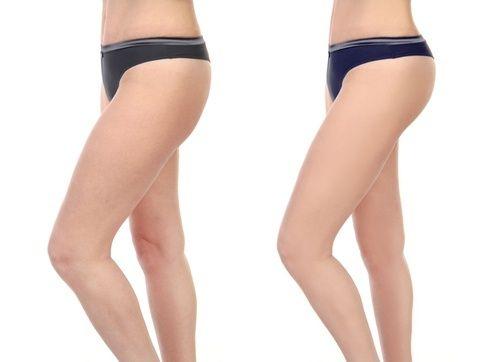 Exercícios para ter coxas mais magras e tonificadas