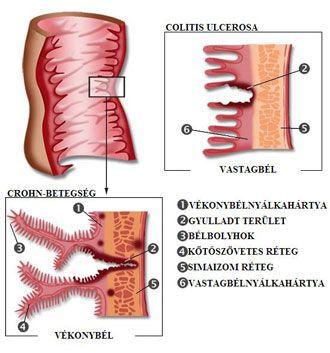 A bél ismeretlen eredetű gyulladásos megbetegedései (Colitis ulcerosa, Crohn-betegség); Forrás: www.internisten-im-netz.de