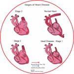End Stage Congestive Heart Failure Symptoms - http://www.healtharticles101.com/end-stage-congestive-heart-failure-symptoms/#more-6337